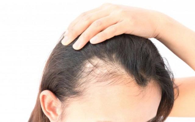 آلوپسی یا ریزش موی سکه ای چیست؟