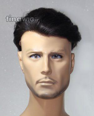 پروتز ترمیم موی مردانه کد 001-1b