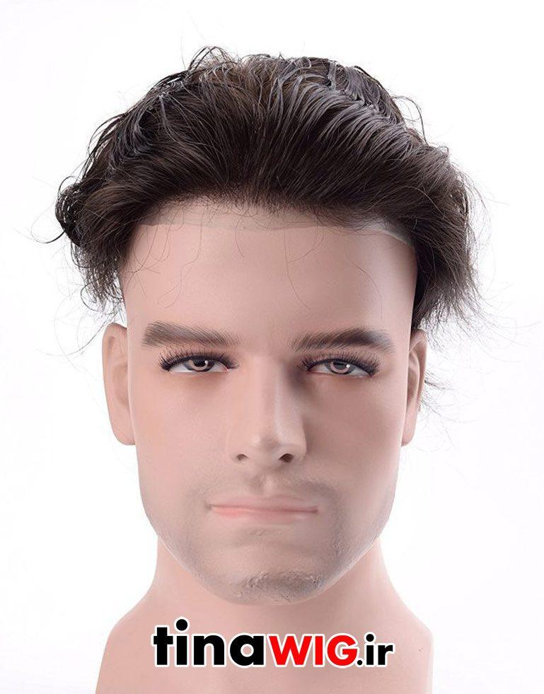 پروتز ترمیم موی مردانه با موی طبیعی