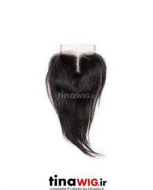 پروتز ترمیم موی زنانه کوتاه رنگ مشکی ۲